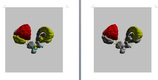 側頭葉の使い過ぎ(黄色)が右左脳ともに通常値になり、青く不活性を示していた部分も通常値に!